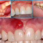 Абсцесс полости рта