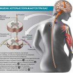 Боковой амиотрофический склероз (БАС)