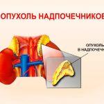 Гормонально-неактивные опухоли надпочечников