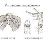 Парафимоз