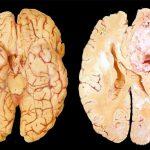 Внутримозговые опухоли полушарий мозга